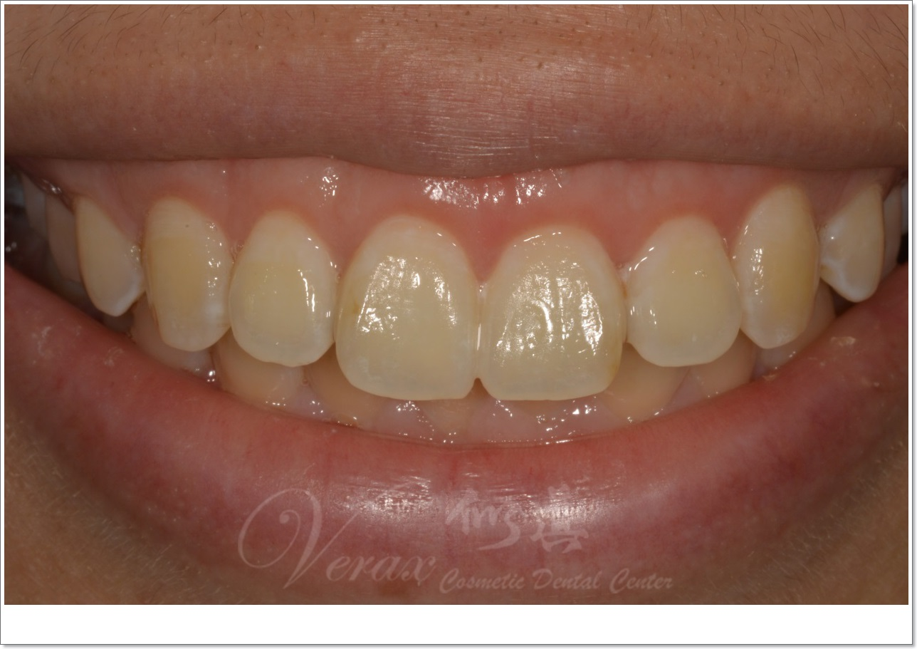 waterlase gums cosmetic surgery