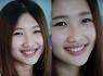 水雷射牙齦整形 牙冠增長術 牙齦淨白術