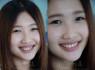waterlase smile implant tooth dentistry