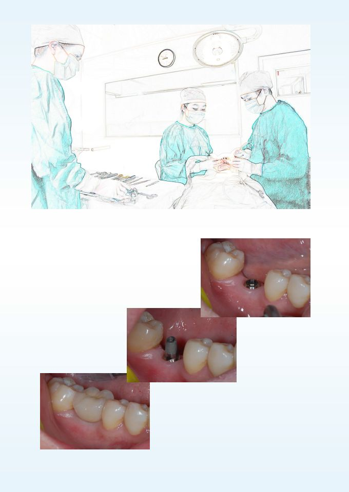 waterlase smile implant tooth dentistry